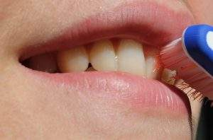 General Gum Health
